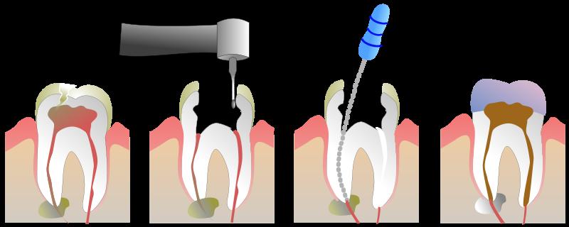 Slikovni rezultat za endodoncija