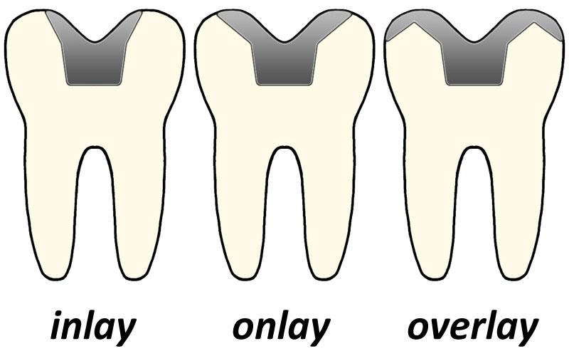 Brušenje zuba za estetske supstitute