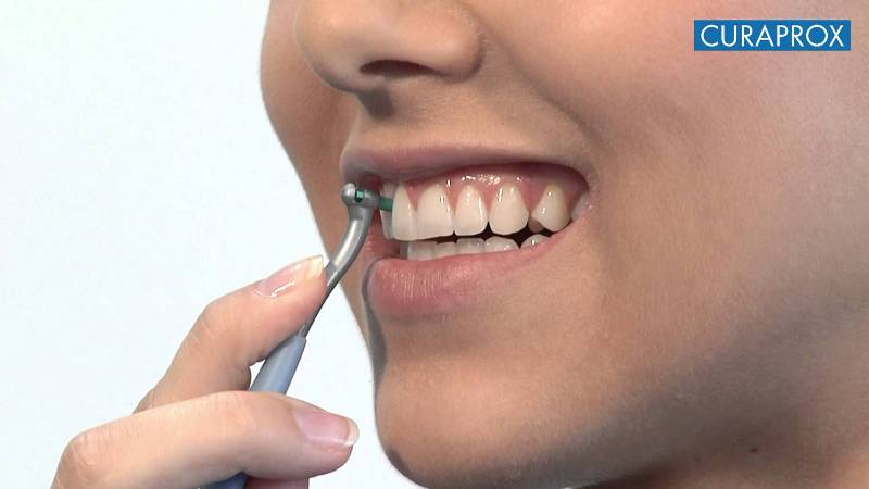 Kontinuirana edukacija iTOP (individualni trening oralne profilakse)