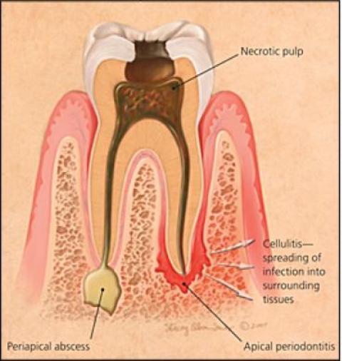 Kilinička klasifikacija pulpnih bolesti