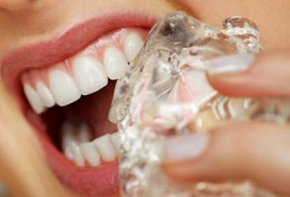 10 najgorih navika za zube srijeda