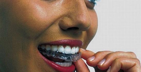 Dentalni -titnici za zube cetvrtak
