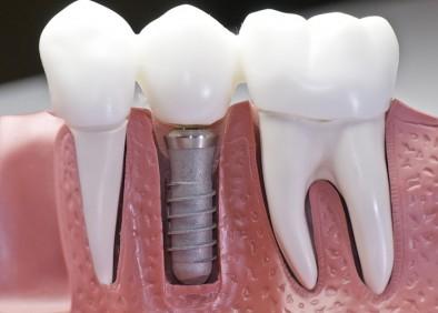 Indikacije i preduslovi za ugradnju zubnog implantata utorak