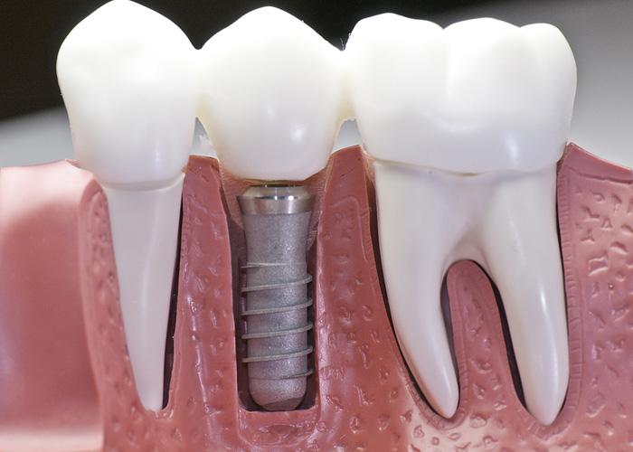 Indikacije i preduslovi za ugradnju zubnog implantata