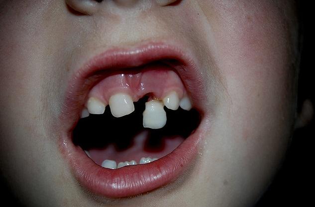 Traumatske ozljede zuba
