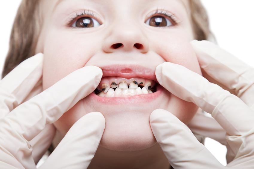 """Zbog čega cirkularni karijes """"napada"""" zubiće"""
