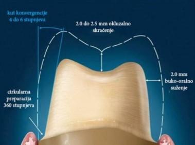 Biolo-ki -imbenici i preparacija zuba nosa-a za cirkonij oksidne i metal-kerami-ke proteti-ke radove utorak 1
