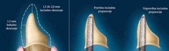 Biolo-ki -imbenici i preparacija zuba nosa-a za cirkonij oksidne i metal-kerami-ke proteti-ke radove utorak 2