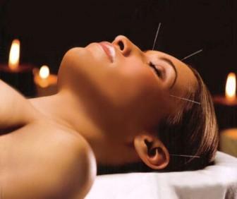 Mo-e li se akupunktura primjeniti u stomatologiji utorak
