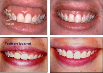 Pretjerano vidljive desni - gummy smile srijeda