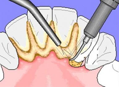 zubni kamenac srijeda 1