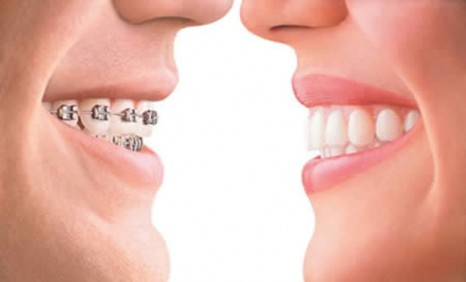 Zdravi zubi sa fiksnim ortodontskim aparatom
