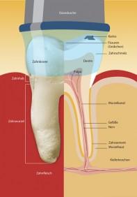 Antimikrobni tretman korijenskih kanala zuba utorak 1