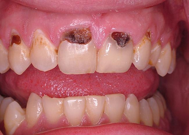 У меня плохая эмаль на зубах