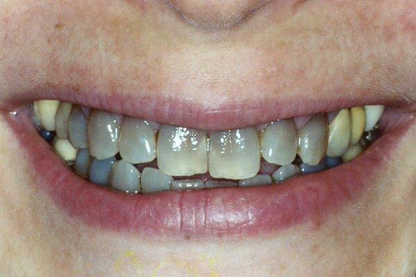 Obojenja ili diskoloracije zuba I dio ponedeljak 2