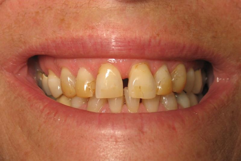 Obojenja ili diskoloracije zuba I dio ponedeljak