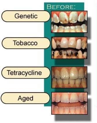 Obojenja ili diskoloracije zuba II dio