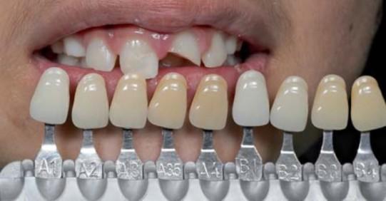 Uskla-ivanje boje zuba u okviru fiksnoprotetske terapije