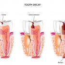 Zubni apsces