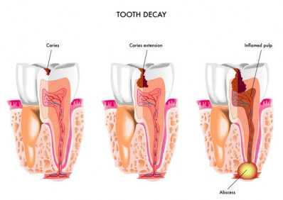 Zubni apsces srijeda