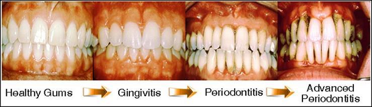 Parodontna plasti-na kirurgija srijeda