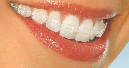 Idealno vrijeme za ispravljanje zuba (ortodonciju) – 1. dio