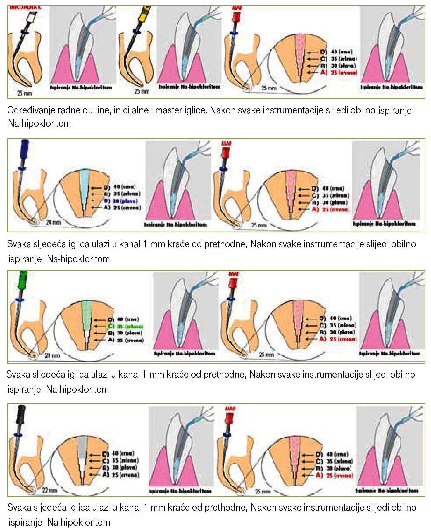 Rucna-instrumentacija-step-back-page-111