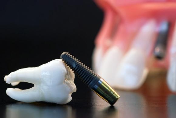 Postavljanje zubnog implanta – II dio (zarastanje, integracija i moguće komplikacije)