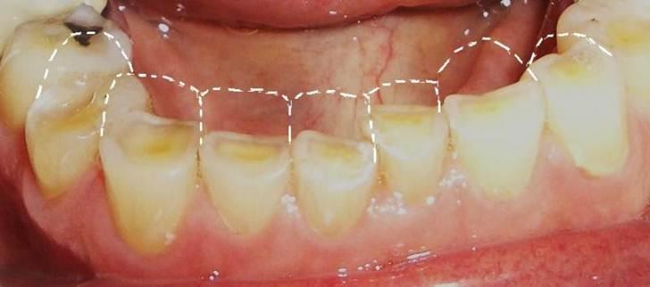 Nekarijesna otteåenja tvdih zubnih tkiva