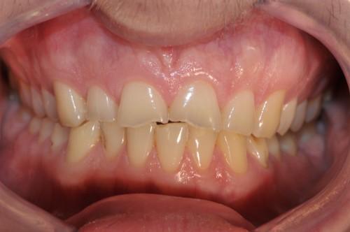 Nekarijesna otteåenja tvdih zubnih tkiva1
