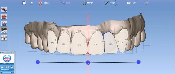 Digital Smile Design srijeda (1)