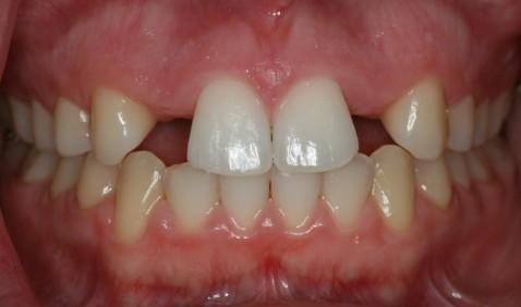 Kad zubi nisu normalni srijeda (1)