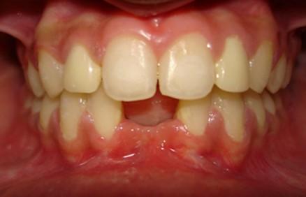 Kad zubi nisu normalni srijeda (2)