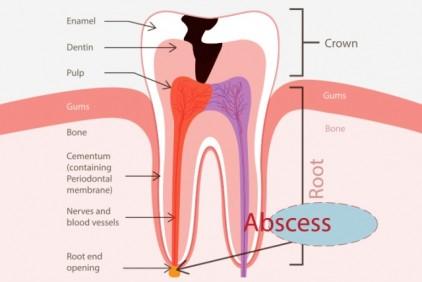 Apsces- srijeda (2)
