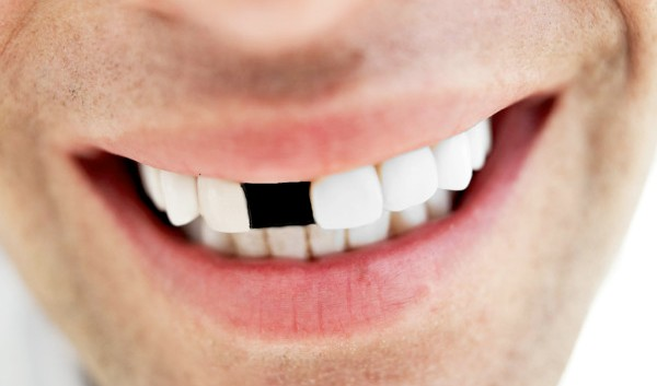 Polomili ste zub srijeda