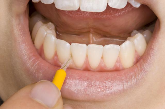 Pravilno čišćenje prostora između zubi petak