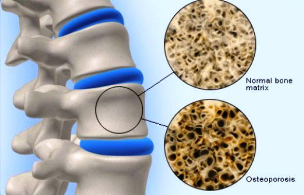 Oralne manifestacije osteoporoze ponedeljak