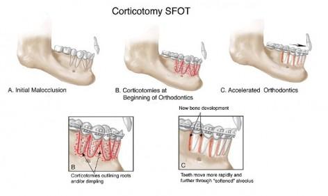 Kortikotomija ponedeljak