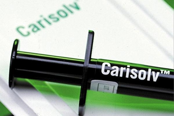 Carisolv – rješenje za strah od odlaska kod zubara