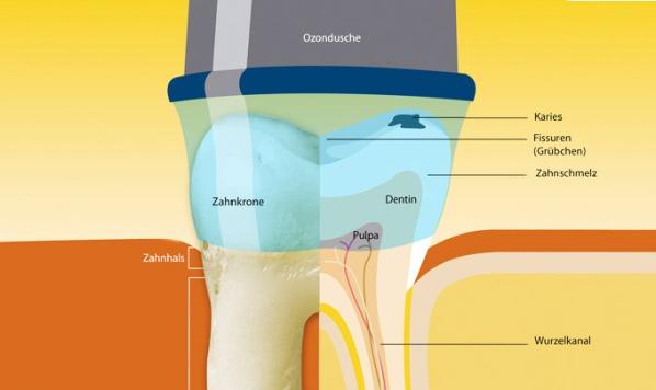 Primjena ozona u stomatologiji SRIJEDA (1)