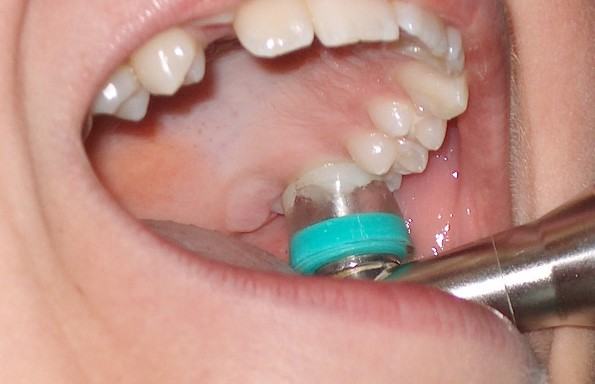 Primjena ozona u stomatologiji SRIJEDA (2)