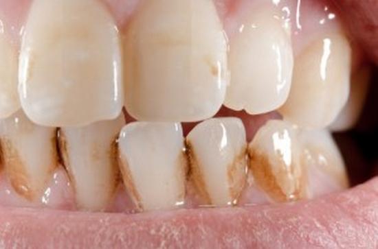 Braune Zahnverfärbung Entfernen