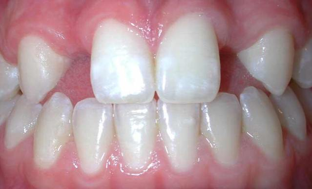 Kad stalni zubić ne poraste petak