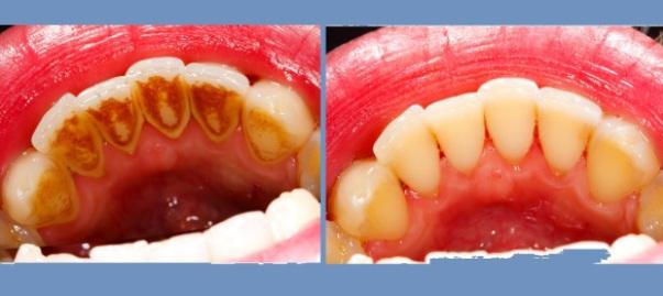 Imate zubni kamenac Možda imate i ove bolesti ponedeljak