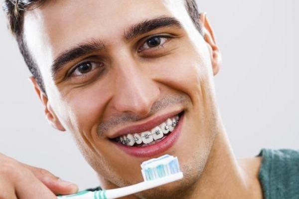 Ispravljanje zuba kod odraslih petak (3)
