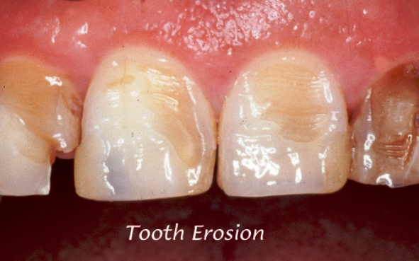 Može li se erozija zuba spriječiti srijeda