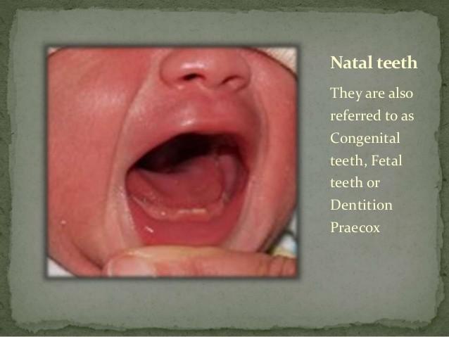 natalni-zubi-srijeda