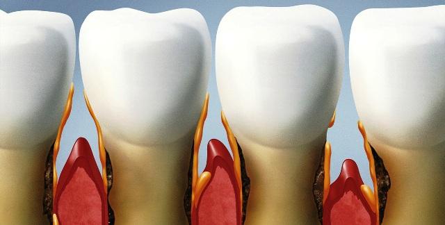 periodontalna-terapija-dentalnim-laserom-petak