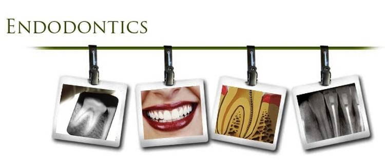 revizija-endodontskog-lijecenja-ponedeljak