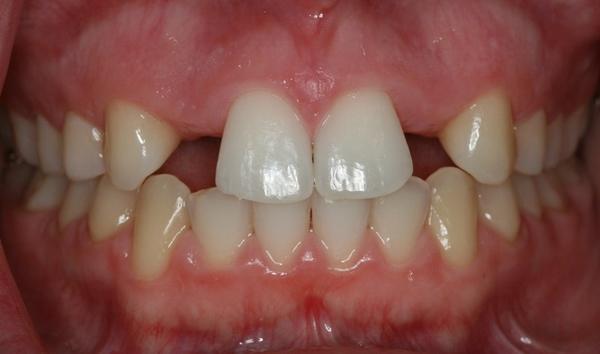 Ortodontske anomalije -hipodoncija ponedeljak (2)